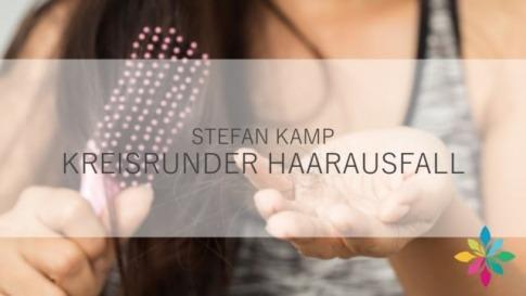 Stefan Kamp spricht im Interview über kreisrunden Haarausfall