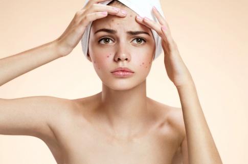 Akne Creme ist die erste Hilfe gegen Hautunreinheiten