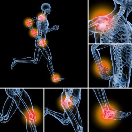 Eine Grafik zeigt die Gelenke, die bei Arthrose Schmerzen haben
