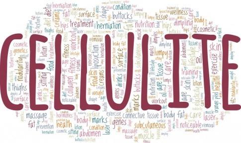Grafik mit dem Wort Cellulite und den Ursachen