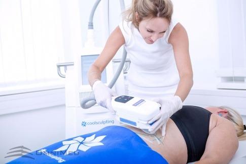 Coolsculpting Fettreduktion durch Kälte am Bauch