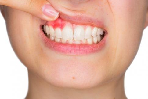Eine Frau hat eine Zahnfleischentzündung in ihrem Oberkiefer