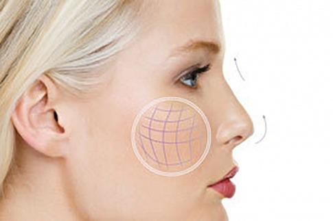 Das Gesicht einer blonden Frau ist im Profil abgebildet. Sie hat straffe Haut. Mit Pfeilen wird die Richtung der Straffung angedeutet.