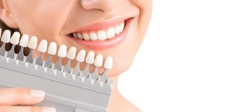Eine Frau hält eine Farbpalette für Zähne