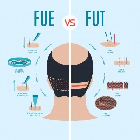Schema von FUE- und FUT-Haartransplantation
