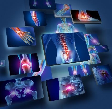 Eine grafische Darstellung der am häufigsten von Gelenkschmerzen betroffenen Körperbereiche.