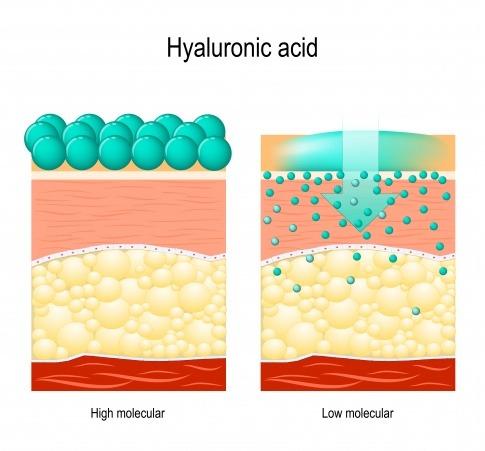 Schema für unterschiedliche Hyaluronsäurearten