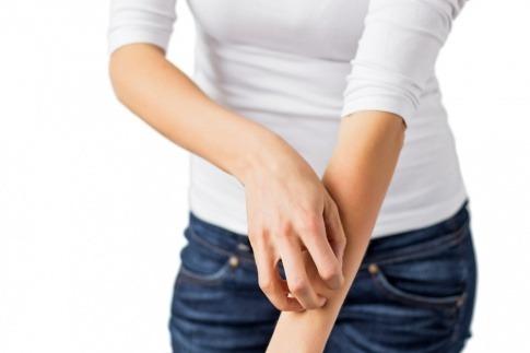 Eine Frau kratzt sich am Arm wegen Juckreiz bei Nickelallergie