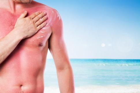 Ein Mann hat einen Sonnenbrand
