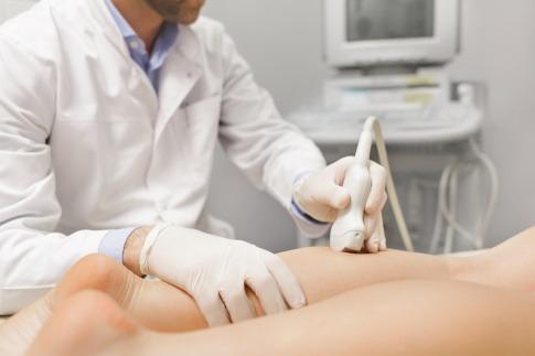 Frau bei Behandlung gegen Krampfadern.