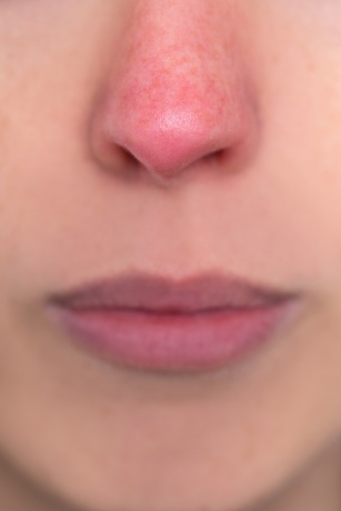 Eine Nase mit Couperose ist zu sehen