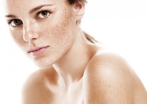 Frau mit Pigmentflecken im Gesicht