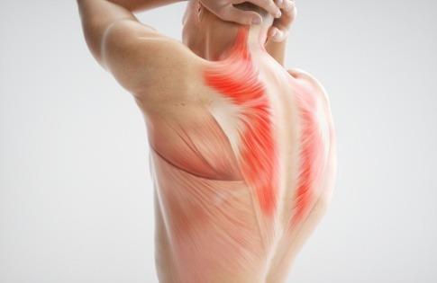 Eine Grafik zeigt die starke Rückenmuskulatur eines Mannes
