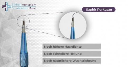Eine Grafik zeigt die Saphir Perkutan Technik