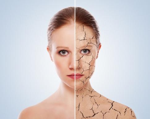 trockene Haut - Dehydration