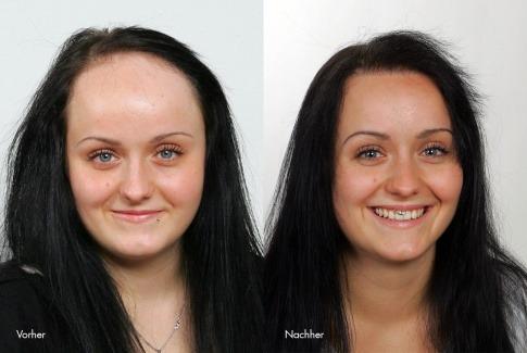 Eine Frau ist auf einem Vorher-Nachher Foto (Haartransplantation bei Frauen)
