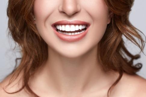 Eine Frau zeigt ihre weißen Zähne