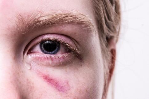 Eine Frau hat eine Wunde beim Auge und weint