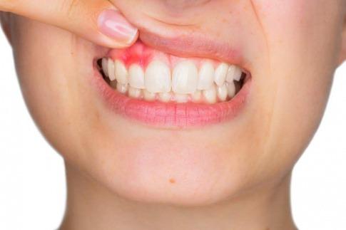 Wenn das Zahnfleisch blutet, ist das ein erstes Anzeichen für eine Entzündung.