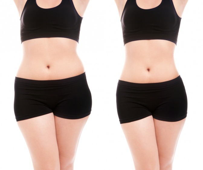 Die Bilder zeigen als Erfahrungsberichte nach Fettabsaugung einen Frauenkörper und den selben in schlankerer Version