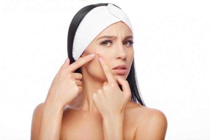 Eine Frau drückt Pickel bei der Hautreinigung aus
