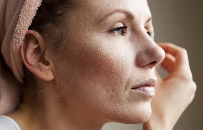 Aknenarben bei einer Frau