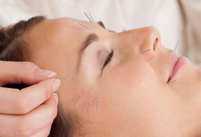 Frau bekommt Akupunktur für schöne Haut