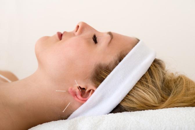 Eine Frau wird mit Akupunkturnadeln am Ohr zum Abnehmen behandelt