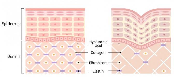 Hautalterung grafisch dargestellt