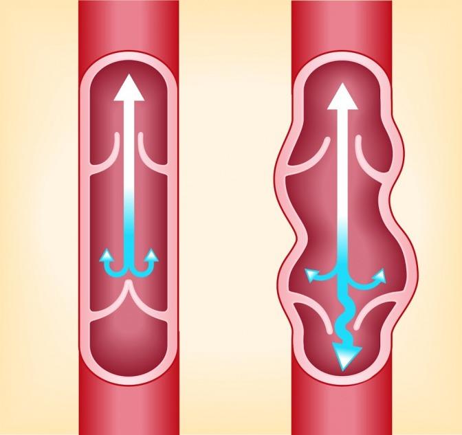 Krampfadern entstehen durch kaputte Venenklappen.