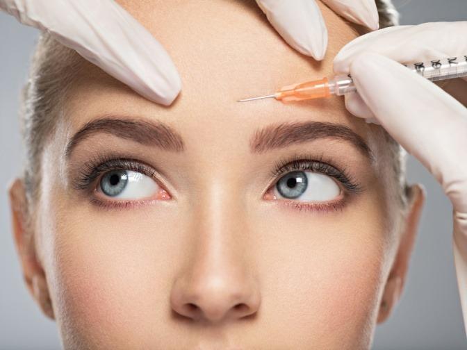 Parakresse als Alternative zum Botox