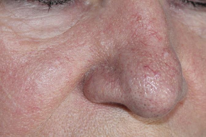 Was ist Couperose und was kann man gegen die Hautrötung tun?