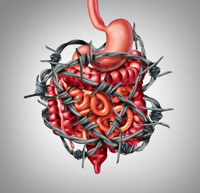Eine Grafik zeigt einen Darm, der mit Stacheldraht umwickelt ist