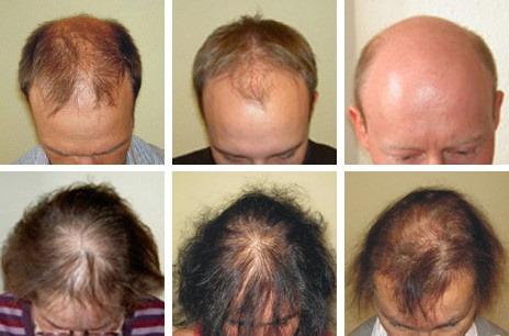 Es prolabiert das Haar bei mononukleose