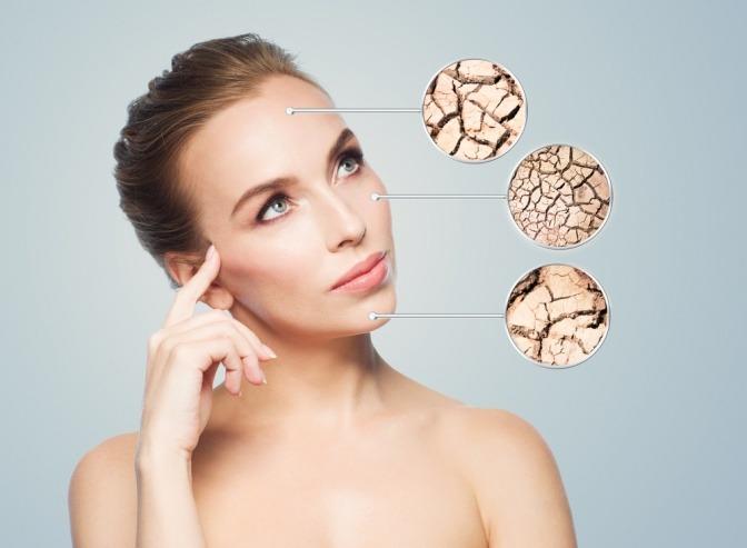 Extrem Trockene Haut Tipps Zur Richtigen Pflege