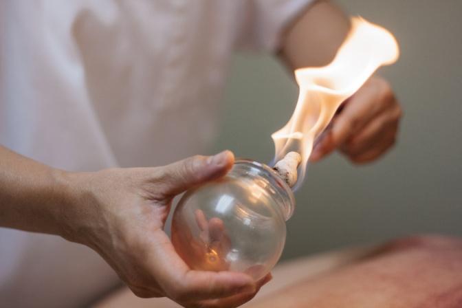 Das Schröpfglas wird mit Feuer erhitzt