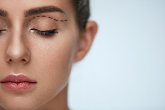 Junge Frau mit OP-Markierungen über dem Auge