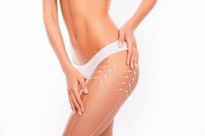 Eine Frau mit schönen Beinen und Linien für OPs