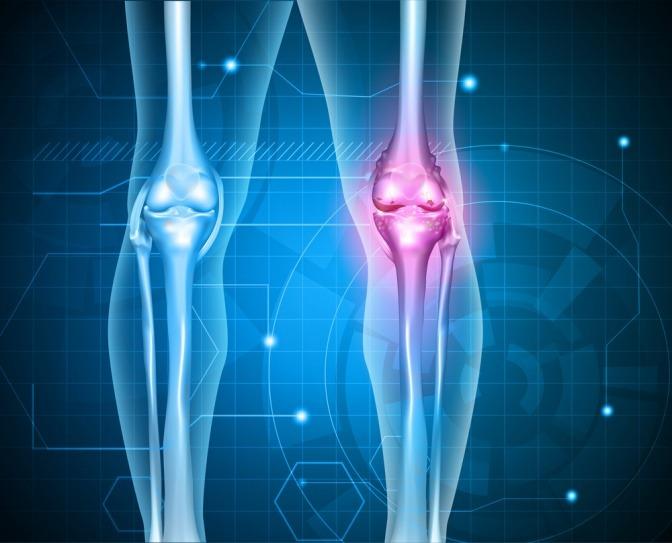 Eine Röntgenaufnahme zeigt Gelenke