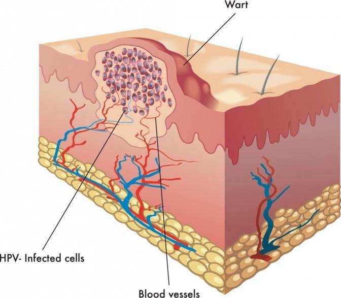 Eine Grafik zeigt den Aufbau von Warzen
