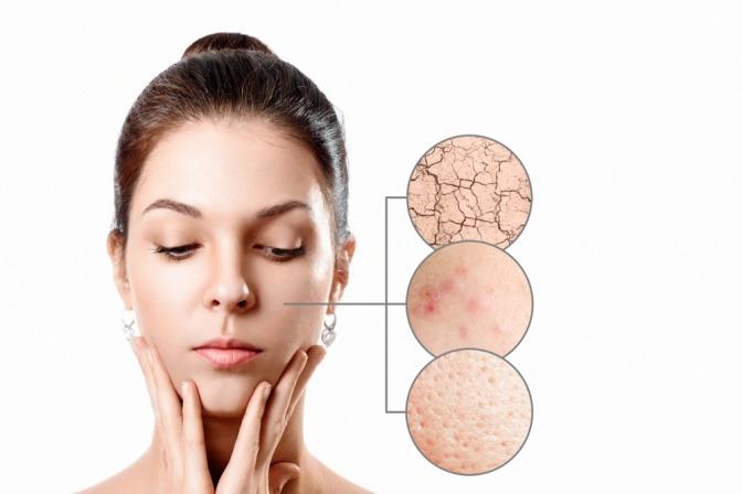 Frau mit Hautproblemen und geschädigter Haut