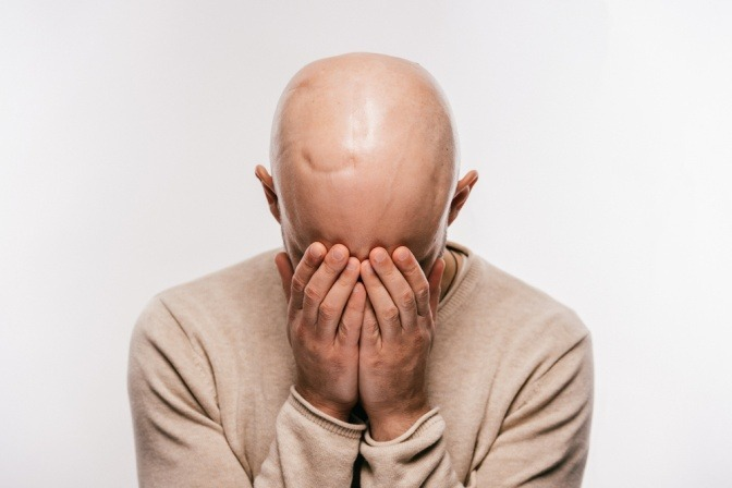 Mann mit Glatze hält Hände vors Gesicht