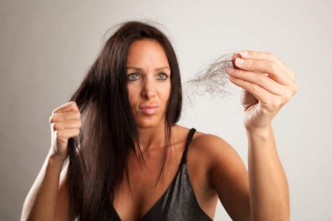 Eine Frau hat Haarausfall