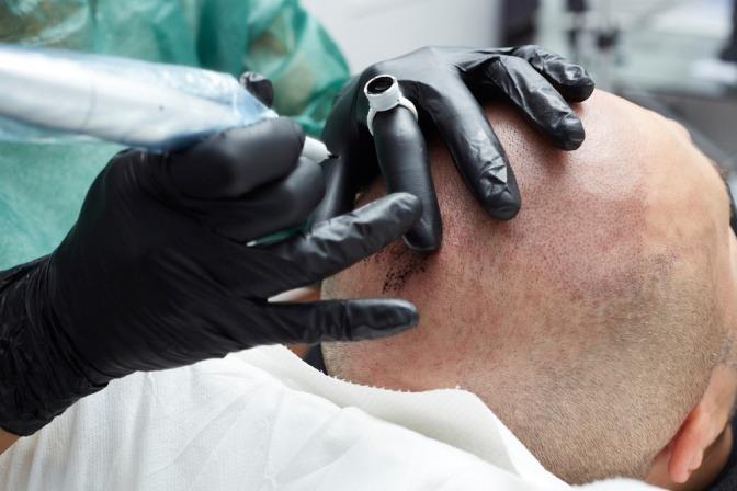 Bei einem Mann werden Haare pigmentiert