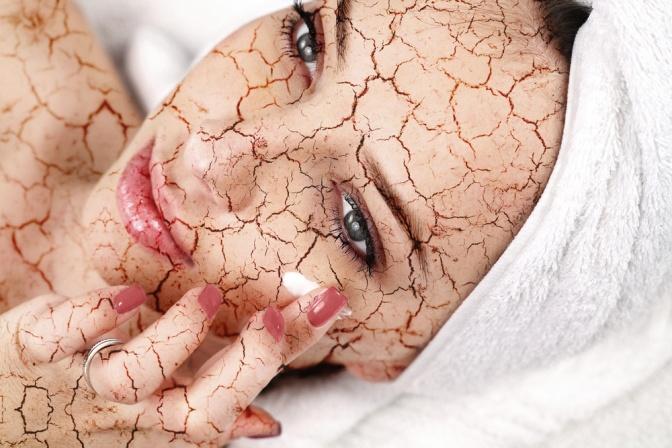 Eine Frau mit übertrieben dargestellter trockener Haut