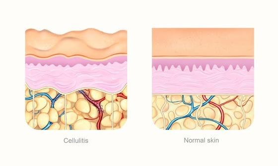 Eine Grafik zeigt den Aufbau der Haut bei Cellulite