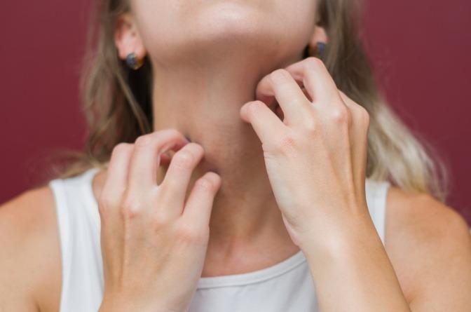 Frau kratzt sich den Hals wegen Pickel durch Schwitzen