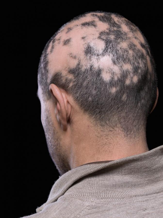 Mann mit kreisrundem Haarausfall