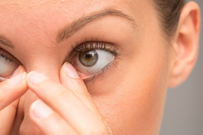 Eine Frau reibt an ihren Augen. Das kann ein Lidekzem verursachen