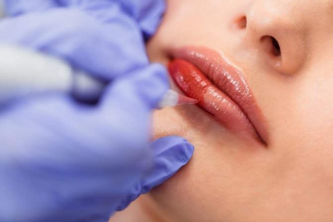 Frau bei einer Permanent Behandlung an den Lippen